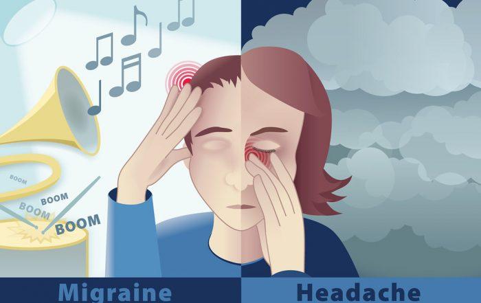 decrease-migraines-naturally-broward